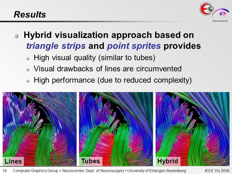 IEEE Vis 2006Computer Graphics Group + Neurocenter, Dept. of Neurosurgery University of Erlangen-Nuremberg18 Results Hybrid visualization approach bas