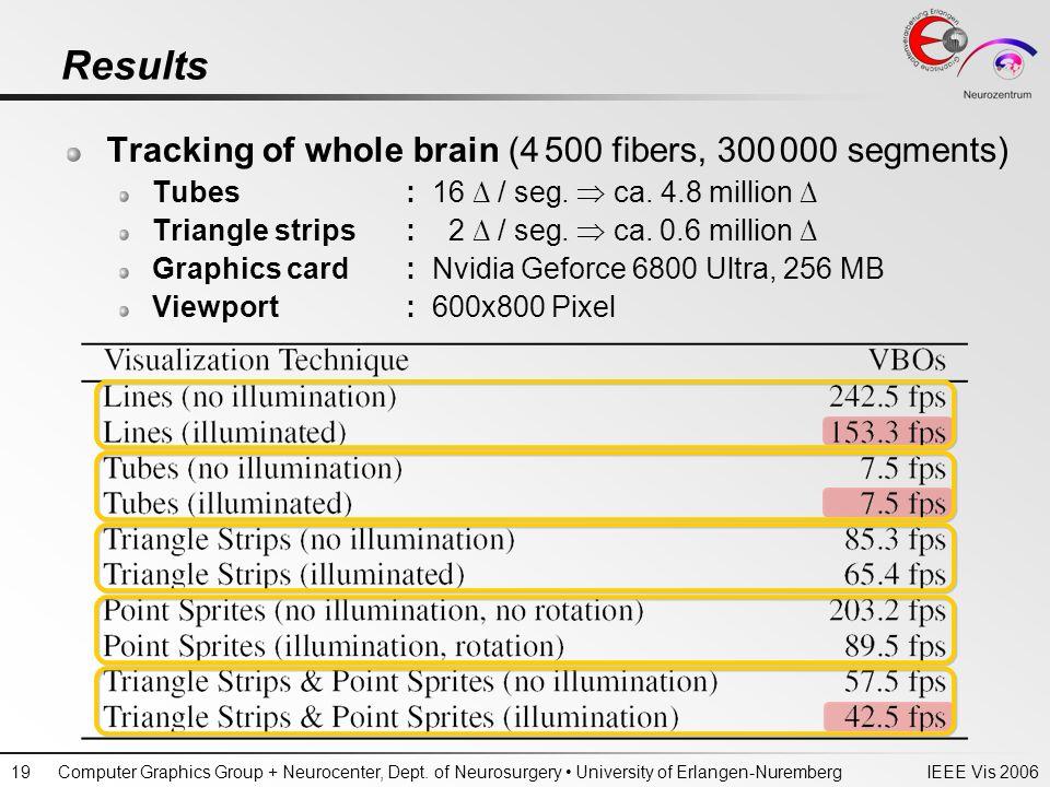 IEEE Vis 2006Computer Graphics Group + Neurocenter, Dept. of Neurosurgery University of Erlangen-Nuremberg19 Results Tracking of whole brain (4 500 fi