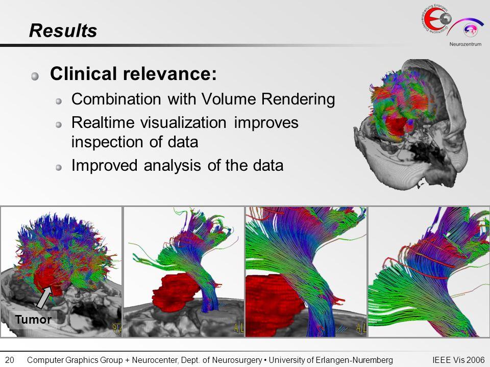 IEEE Vis 2006Computer Graphics Group + Neurocenter, Dept. of Neurosurgery University of Erlangen-Nuremberg20 Results Clinical relevance: Combination w