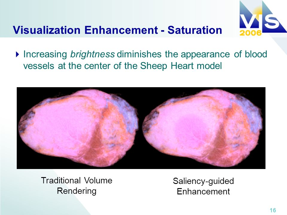 16 Visualization Enhancement - Saturation Traditional Volume Rendering Saliency-guided Enhancement Increasing brightness diminishes the appearance of