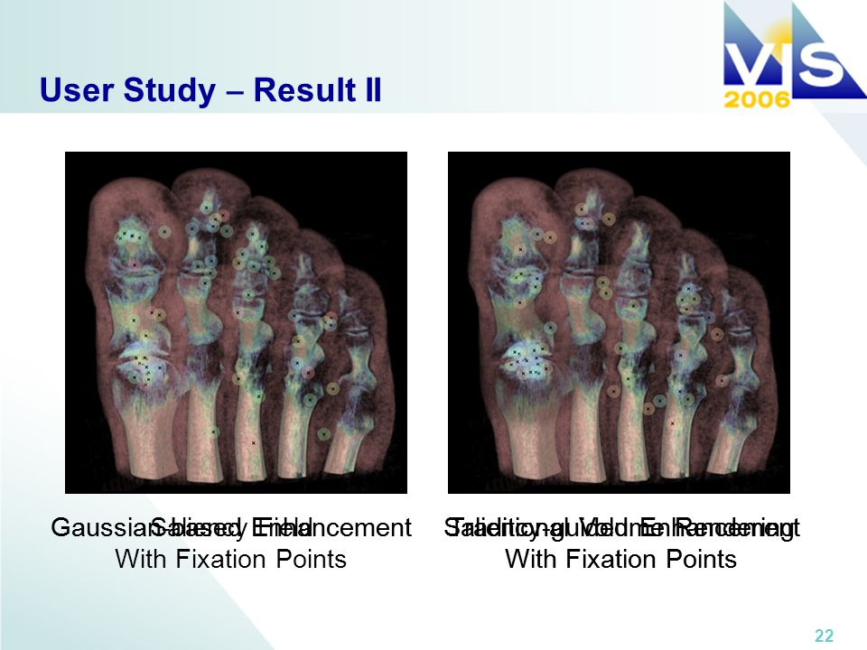 22 User Study – Result II Traditional Volume RenderingTraditional Volume Rendering With Fixation Points Saliency FieldGaussian-based EnhancementGaussian-based Enhancement With Fixation Points Saliency-guided Enhancement With Fixation Points Saliency-guided Enhancement
