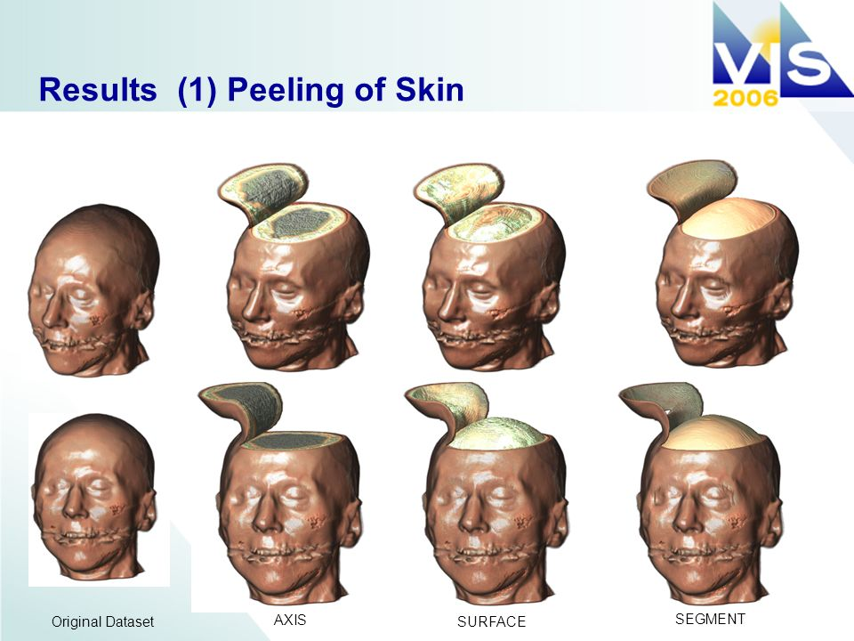 Results (1) Peeling of Skin AXIS SURFACE SEGMENT Original Dataset
