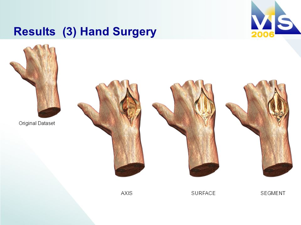 Results (3) Hand Surgery AXISSURFACESEGMENT Original Dataset