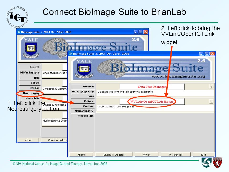 © NIH National Center for Image-Guided Therapy, November, 2008 Connect BioImage Suite to BrianLab 1.