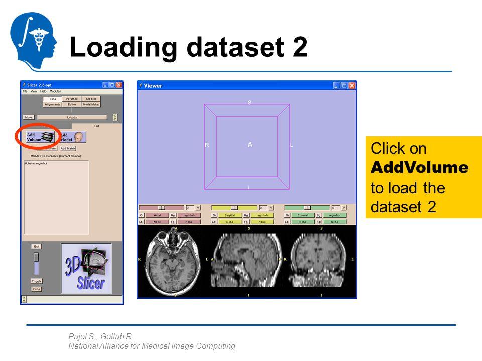 Pujol S., Gollub R. National Alliance for Medical Image Computing Loading dataset 2 Click on AddVolume to load the dataset 2