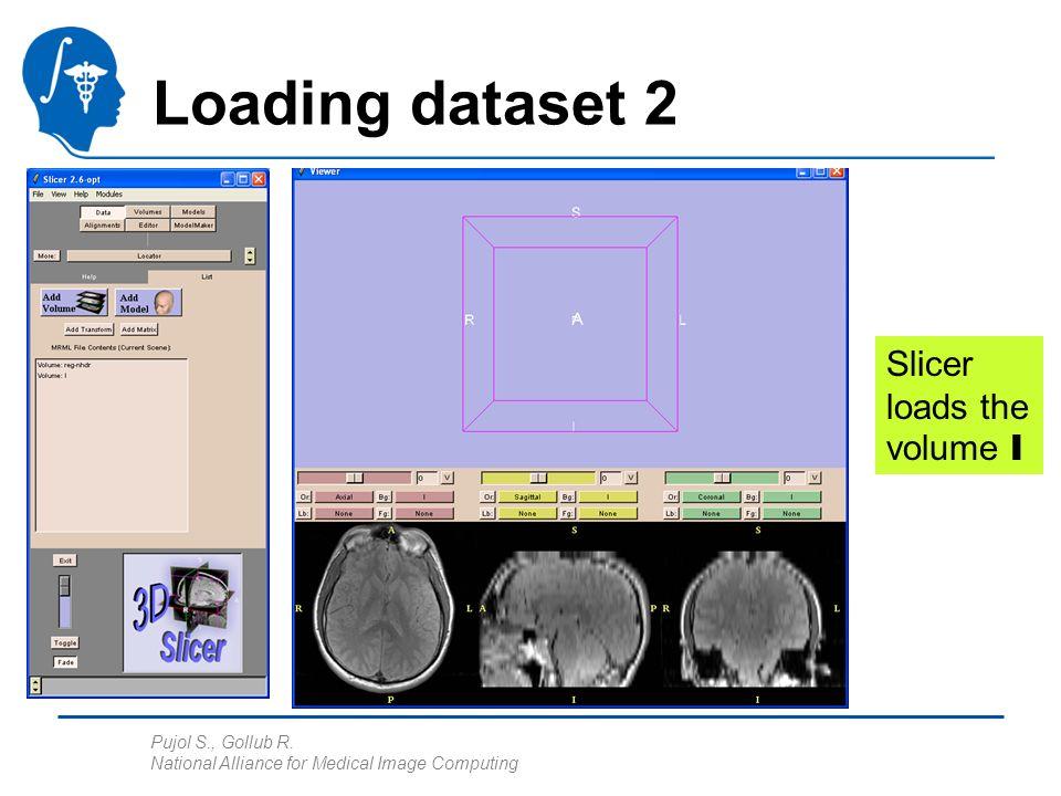 Pujol S., Gollub R. National Alliance for Medical Image Computing Loading dataset 2 Slicer loads the volume I