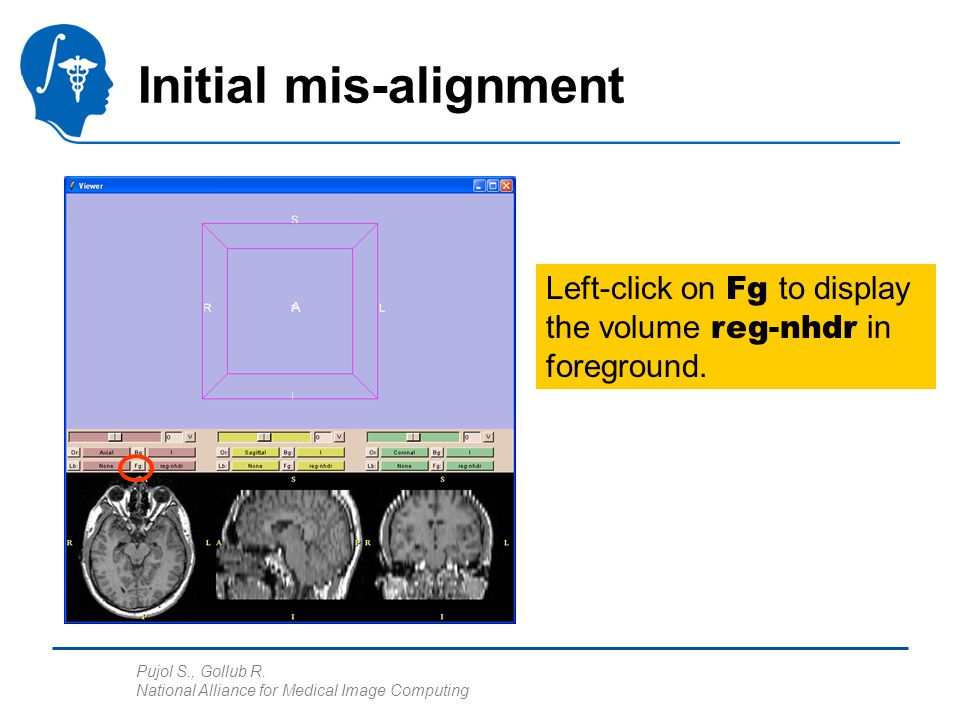 Pujol S., Gollub R. National Alliance for Medical Image Computing Initial mis-alignment Left-click on Fg to display the volume reg-nhdr in foreground.