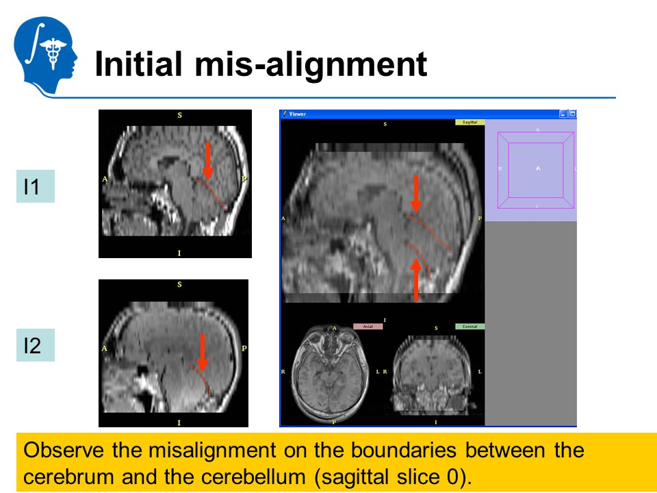 Pujol S., Gollub R. National Alliance for Medical Image Computing Initial mis-alignment Observe the misalignment on the boundaries between the cerebru