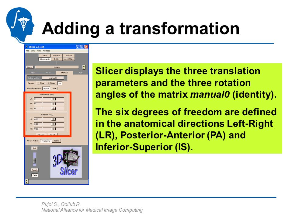 Pujol S., Gollub R. National Alliance for Medical Image Computing Adding a transformation Slicer displays the three translation parameters and the thr