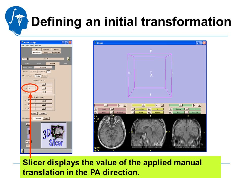 Pujol S., Gollub R. National Alliance for Medical Image Computing Defining an initial transformation Slicer displays the value of the applied manual t