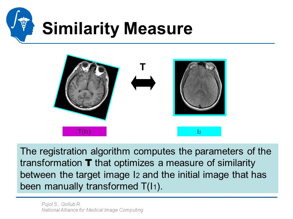 Pujol S., Gollub R. National Alliance for Medical Image Computing Similarity Measure I2I2 T(I 1 ) The registration algorithm computes the parameters o