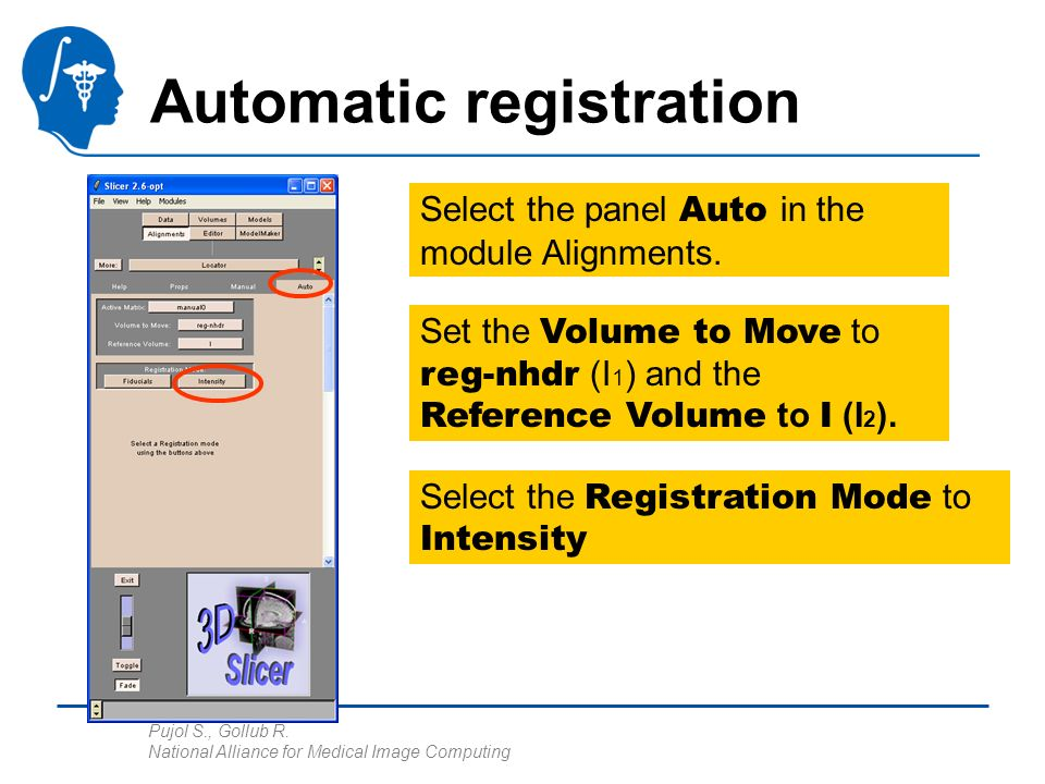 Pujol S., Gollub R. National Alliance for Medical Image Computing Automatic registration Select the panel Auto in the module Alignments. Set the Volum