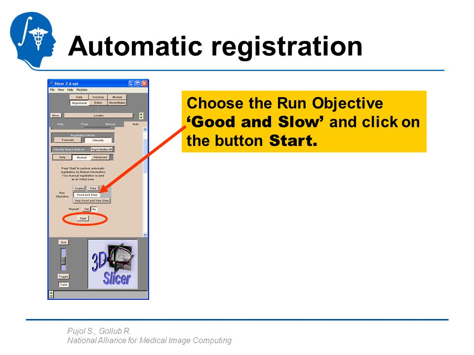Pujol S., Gollub R. National Alliance for Medical Image Computing Choose the Run Objective Good and Slow and click on the button Start. Automatic regi