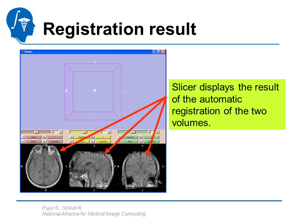 Pujol S., Gollub R. National Alliance for Medical Image Computing Registration result Slicer displays the result of the automatic registration of the