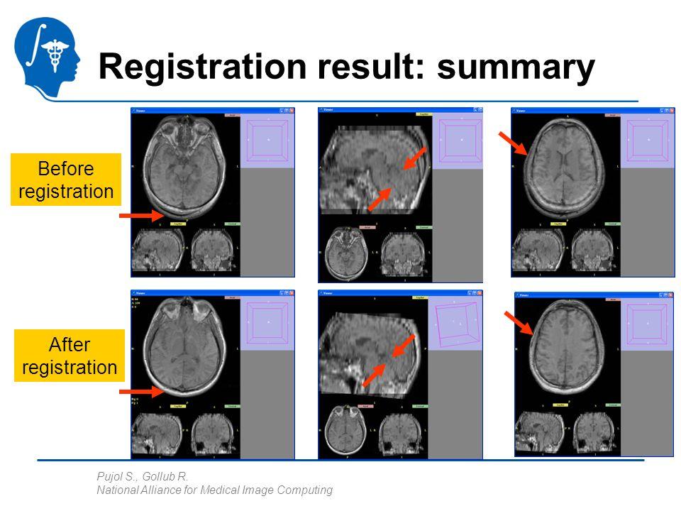 Pujol S., Gollub R. National Alliance for Medical Image Computing Registration result: summary Before registration After registration