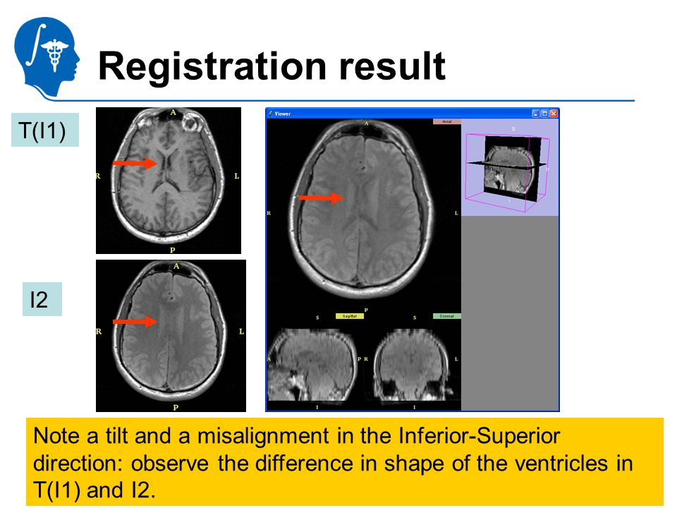 Pujol S., Gollub R. National Alliance for Medical Image Computing Registration result Note a tilt and a misalignment in the Inferior-Superior directio