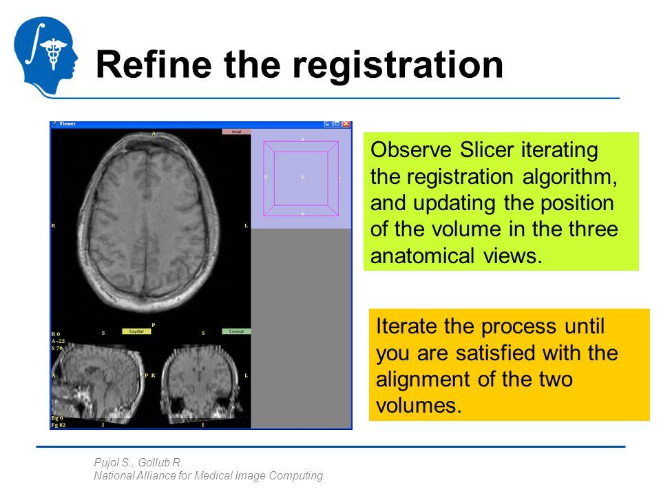 Pujol S., Gollub R. National Alliance for Medical Image Computing Refine the registration Observe Slicer iterating the registration algorithm, and upd