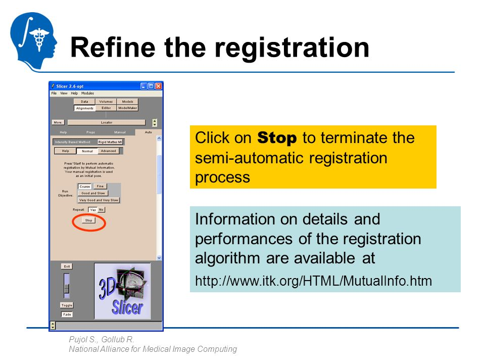Pujol S., Gollub R. National Alliance for Medical Image Computing Refine the registration Click on Stop to terminate the semi-automatic registration p