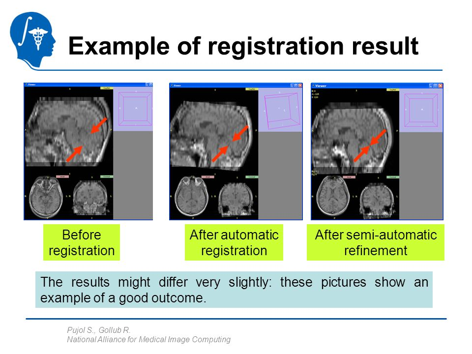 Pujol S., Gollub R. National Alliance for Medical Image Computing Example of registration result Before registration After automatic registration The