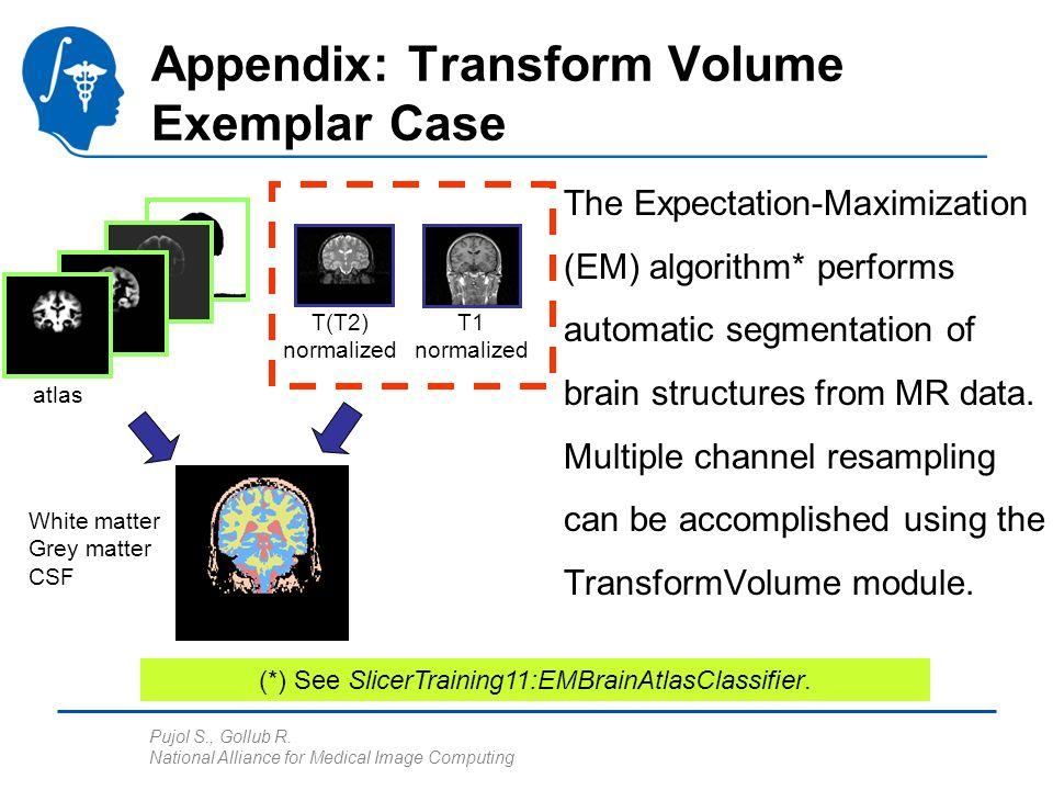 Pujol S., Gollub R. National Alliance for Medical Image Computing Appendix: Transform Volume Exemplar Case The Expectation-Maximization (EM) algorithm