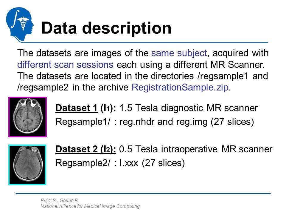 Pujol S., Gollub R. National Alliance for Medical Image Computing Data description Dataset 1 (I 1 ): 1.5 Tesla diagnostic MR scanner Regsample1/ : reg