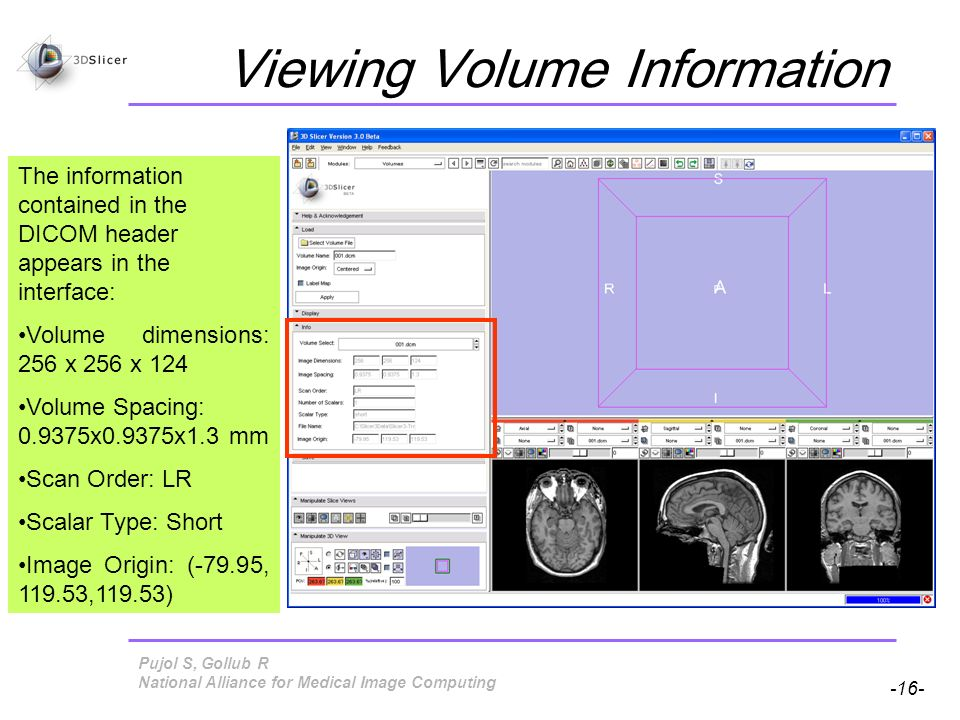 Pujol S, Gollub R -16- National Alliance for Medical Image Computing Viewing Volume Information The information contained in the DICOM header appears in the interface: Volume dimensions: 256 x 256 x 124 Volume Spacing: x0.9375x1.3 mm Scan Order: LR Scalar Type: Short Image Origin: (-79.95, ,119.53)