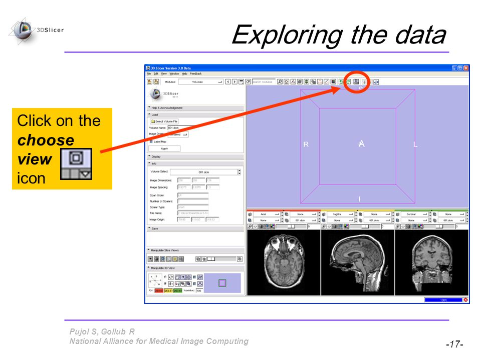 Pujol S, Gollub R -17- National Alliance for Medical Image Computing Click on the choose view icon Exploring the data