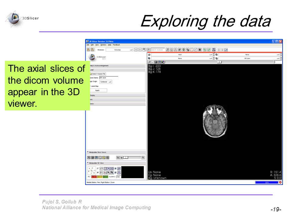 Pujol S, Gollub R -19- National Alliance for Medical Image Computing Exploring the data The axial slices of the dicom volume appear in the 3D viewer.