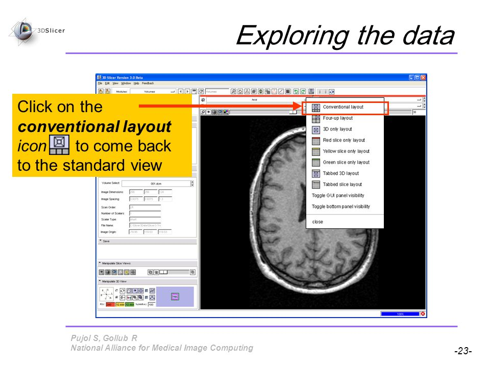 Pujol S, Gollub R -23- National Alliance for Medical Image Computing Exploring the data Click on the conventional layout icon to come back to the standard view
