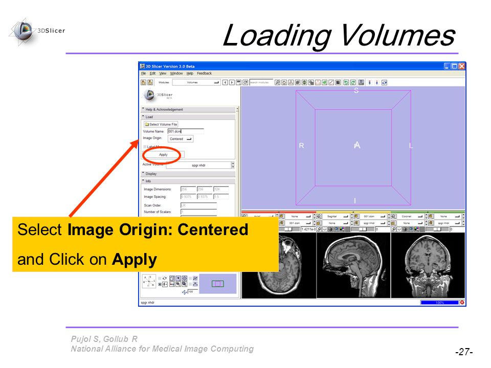 Pujol S, Gollub R -27- National Alliance for Medical Image Computing Loading Volumes Select Image Origin: Centered and Click on Apply