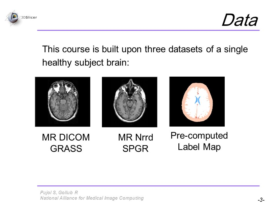 Pujol S, Gollub R -3- National Alliance for Medical Image Computing Data This course is built upon three datasets of a single healthy subject brain: MR DICOM GRASS MR Nrrd SPGR Pre-computed Label Map