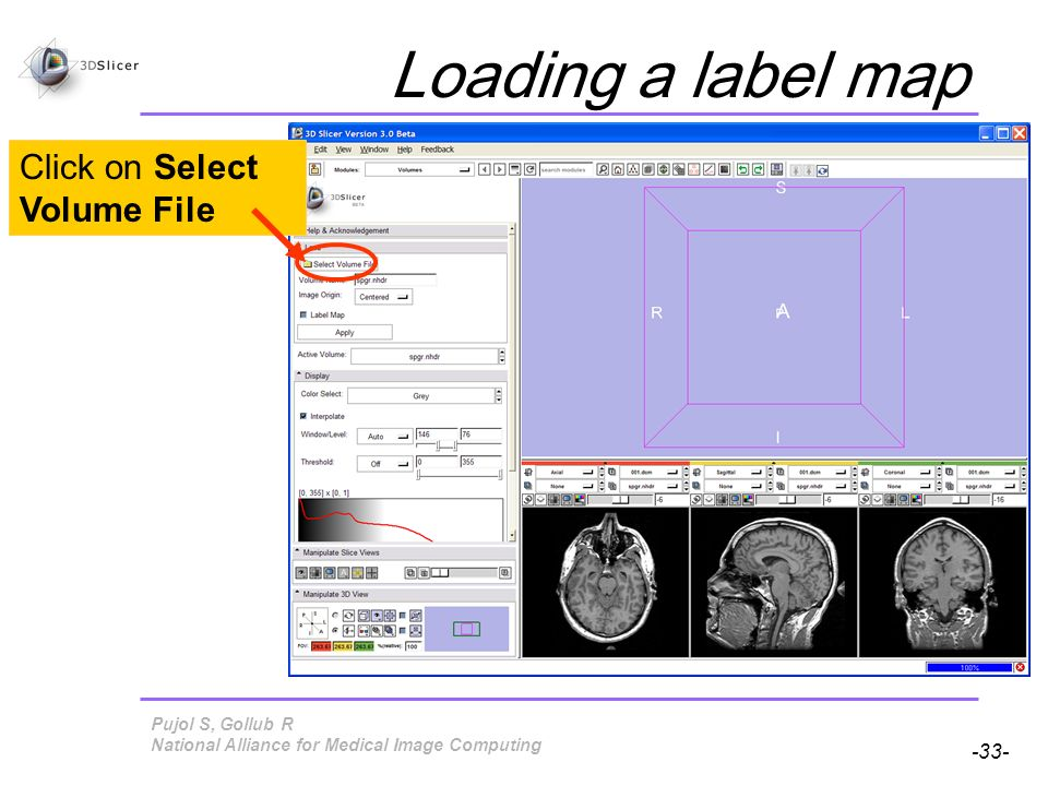 Pujol S, Gollub R -33- National Alliance for Medical Image Computing Loading a label map Click on Select Volume File