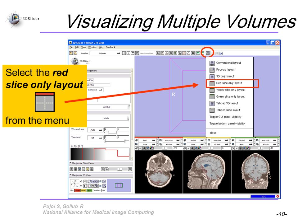Pujol S, Gollub R -40- National Alliance for Medical Image Computing Visualizing Multiple Volumes Select the Red Slice View mode Select the red slice only layout from the menu