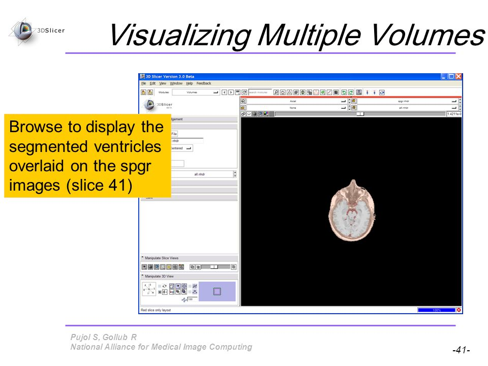 Pujol S, Gollub R -41- National Alliance for Medical Image Computing Visualizing Multiple Volumes Browse to display the segmented ventricles overlaid on the spgr images (slice 41)