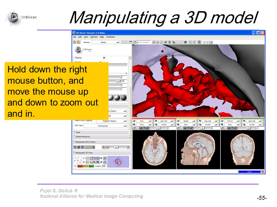 Pujol S, Gollub R -55- National Alliance for Medical Image Computing Manipulating a 3D model Hold down the right mouse button, and move the mouse up and down to zoom out and in.