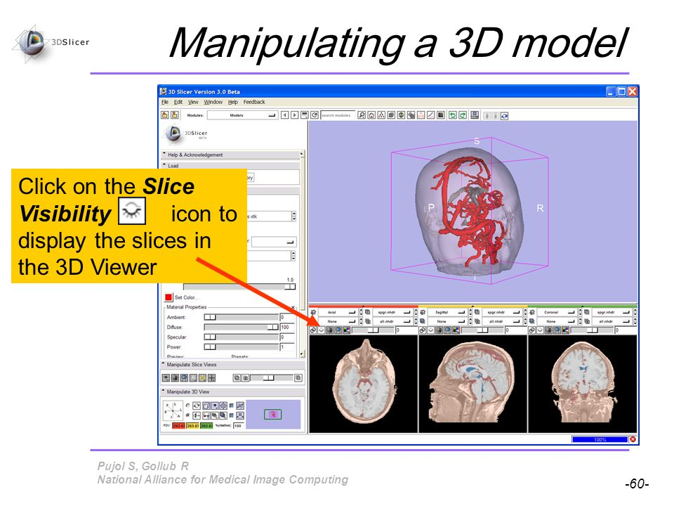 Pujol S, Gollub R -60- National Alliance for Medical Image Computing Manipulating a 3D model Click on the Slice Visibility icon to display the slices in the 3D Viewer