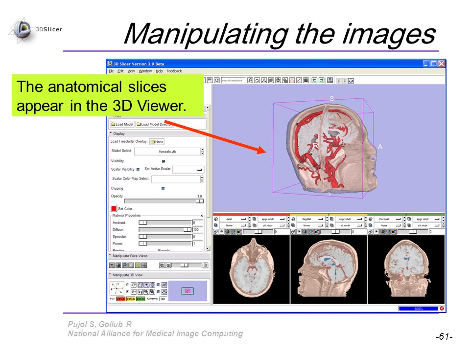 Pujol S, Gollub R -61- National Alliance for Medical Image Computing Manipulating the images The anatomical slices appear in the 3D Viewer.