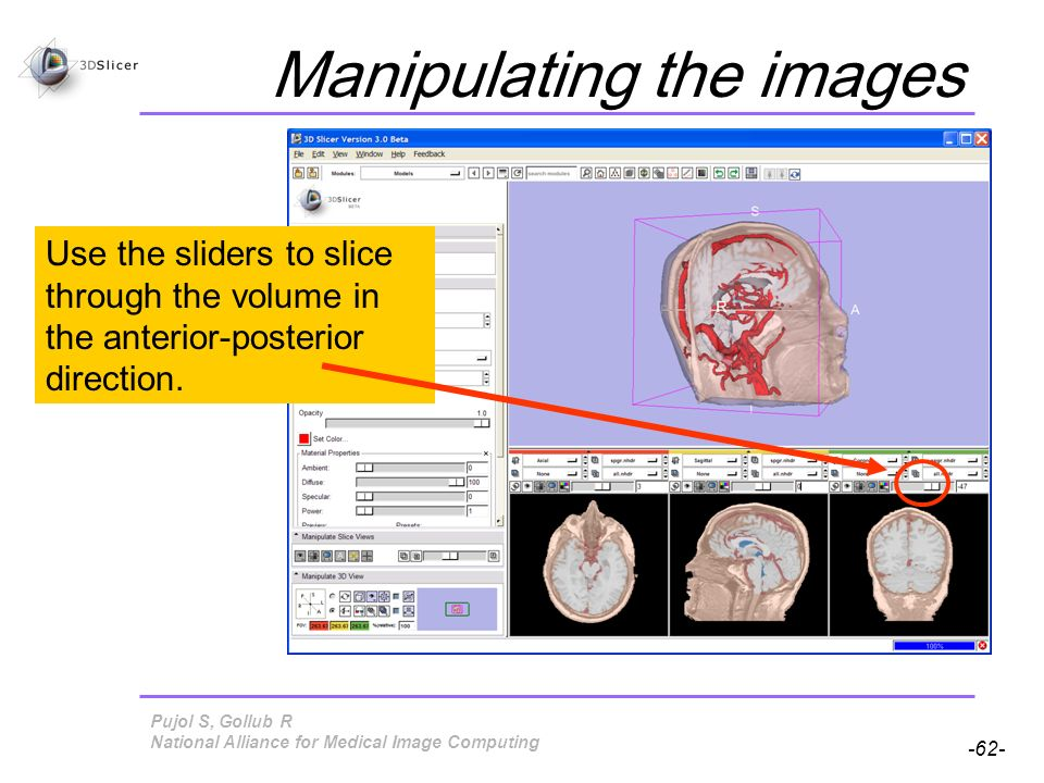 Pujol S, Gollub R -62- National Alliance for Medical Image Computing Manipulating the images Use the sliders to slice through the volume in the anterior-posterior direction.