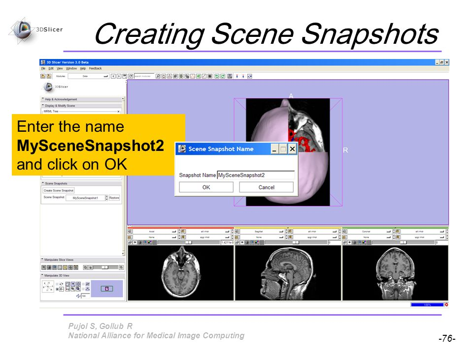 Pujol S, Gollub R -76- National Alliance for Medical Image Computing Creating Scene Snapshots Enter the name MySceneSnapshot2 and click on OK