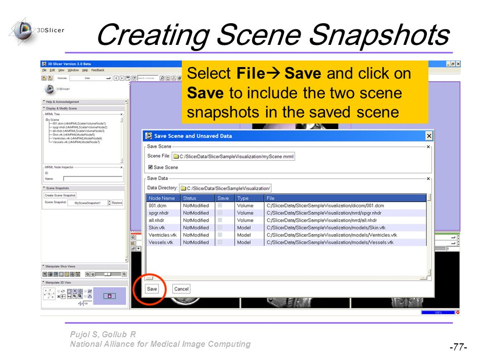 Pujol S, Gollub R -77- National Alliance for Medical Image Computing Creating Scene Snapshots Select File Save and click on Save to include the two scene snapshots in the saved scene