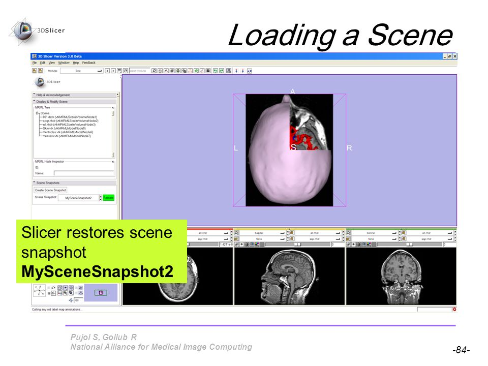 Pujol S, Gollub R -84- National Alliance for Medical Image Computing Loading a Scene Slicer restores scene snapshot MySceneSnapshot2