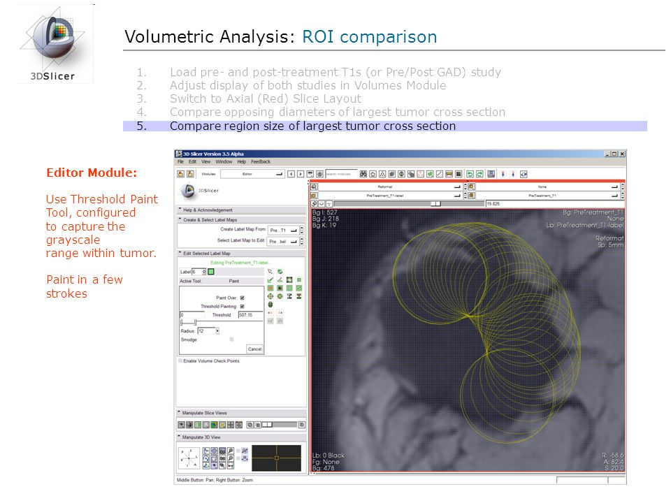Volumetric Analysis: ROI comparison Editor Module: Use Threshold Paint Tool, configured to capture the grayscale range within tumor. Paint in a few st