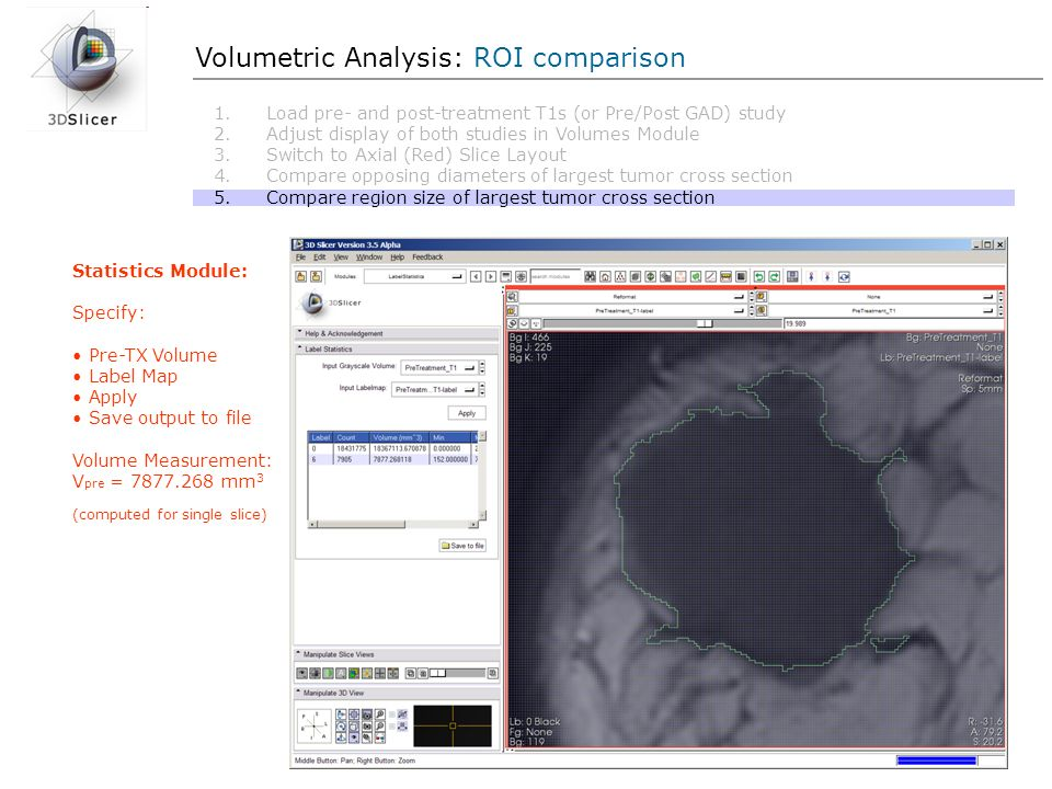 Volumetric Analysis: ROI comparison Statistics Module: Specify: Pre-TX Volume Label Map Apply Save output to file Volume Measurement: V pre = 7877.268