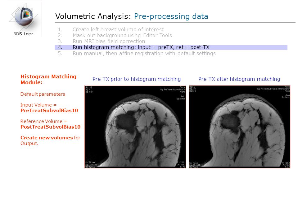 Volumetric Analysis: Pre-processing data 1.Create left breast volume of interest 2.Mask out background using Editor Tools 3.Run MRI bias field correct