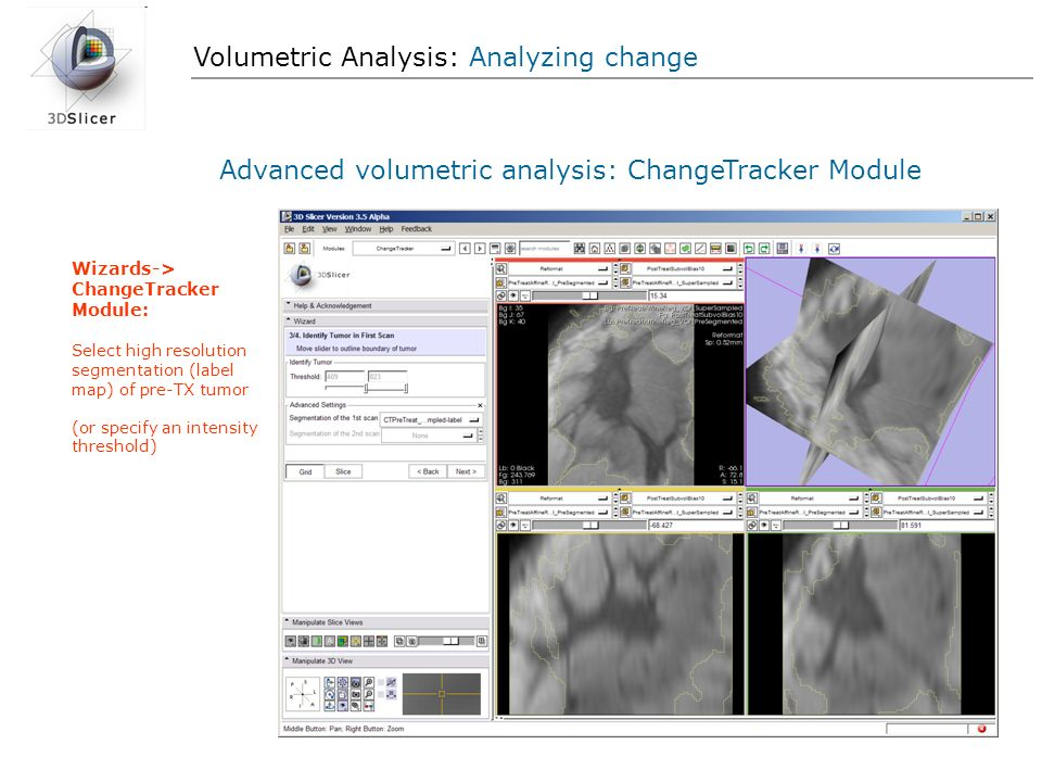Volumetric Analysis: Analyzing change Advanced volumetric analysis: ChangeTracker Module Wizards-> ChangeTracker Module: Select high resolution segmen