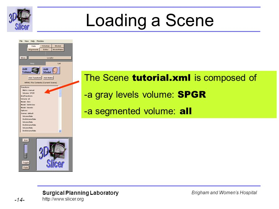 Surgical Planning Laboratory http://www.slicer.org -14- Brigham and Womens Hospital Loading a Scene The Scene tutorial.xml is composed of -a gray levels volume: SPGR -a segmented volume: all