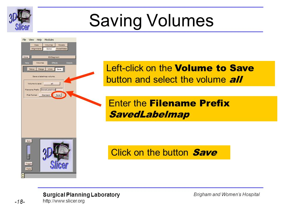 Surgical Planning Laboratory http://www.slicer.org -18- Brigham and Womens Hospital Saving Volumes Left-click on the Volume to Save button and select the volume all Click on the button Save Enter the Filename Prefix SavedLabelmap