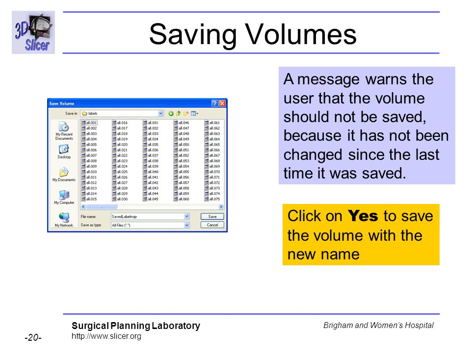 Surgical Planning Laboratory http://www.slicer.org -20- Brigham and Womens Hospital Saving Volumes A message warns the user that the volume should not be saved, because it has not been changed since the last time it was saved.