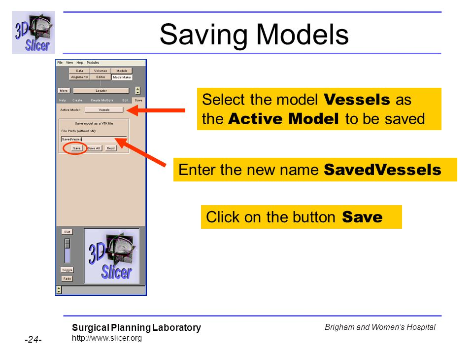 Surgical Planning Laboratory http://www.slicer.org -24- Brigham and Womens Hospital Saving Models Select the model Vessels as the Active Model to be saved Enter the new name SavedVessels Click on the button Save