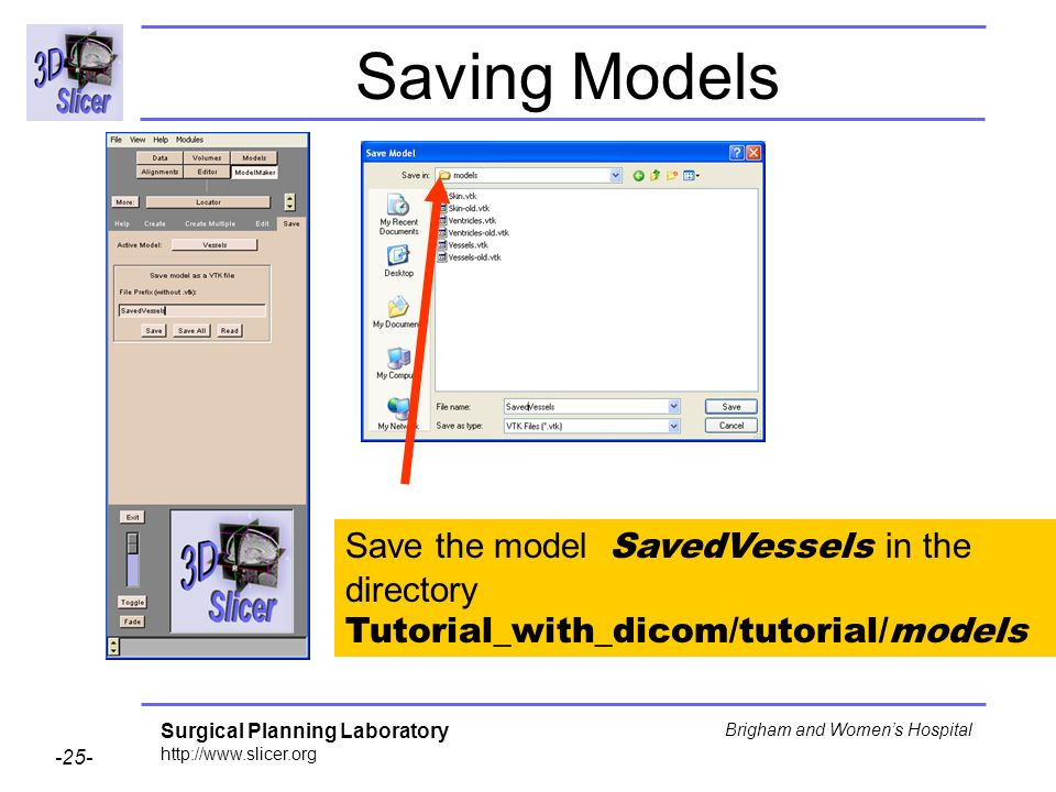 Surgical Planning Laboratory http://www.slicer.org -25- Brigham and Womens Hospital Saving Models Save the model SavedVessels in the directory Tutorial_with_dicom/tutorial/models